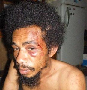 Polisi Menangkap dan Menyiksa Dua MahasiswaUncen